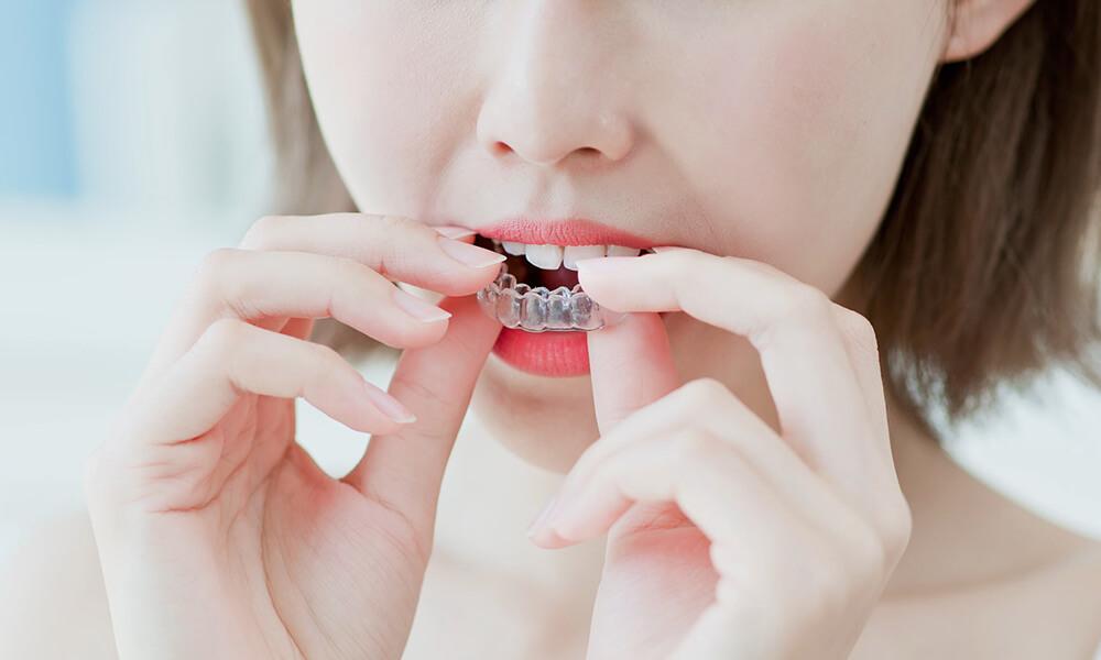 歯の矯正がこの価格!リーズナブルに費用でご提供